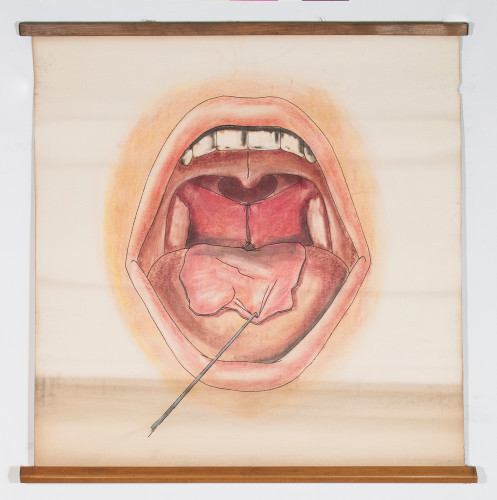 Prikaz usta i ždrijela za vrijeme operacije atrezije nosnoga ždrijela