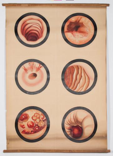 Šest čestih endoskopskih slika (u lijevom okomitom stupcu – dušnik, u desnom stupcu jednjak)