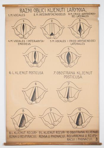 Razni oblici kljenuti glasiljki