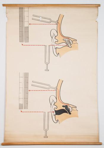 Shematski prikaz akumetrijskog ispitivanja koštane i zračne provodljivosti zvuka  (ispitivanje sluha zvučnom viljuškom, odnosno Rinneov, Weberov i Schwabachov test)