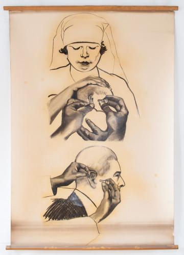 Držanje uha pri otoskopiji djeteta i odraslog (dječje se uho povlači za resicu dolje i naprijed, a uho odraslog obrnuto da se postigne izravnavanje zvukovoda i postigne izravan pogled na bubnjić)