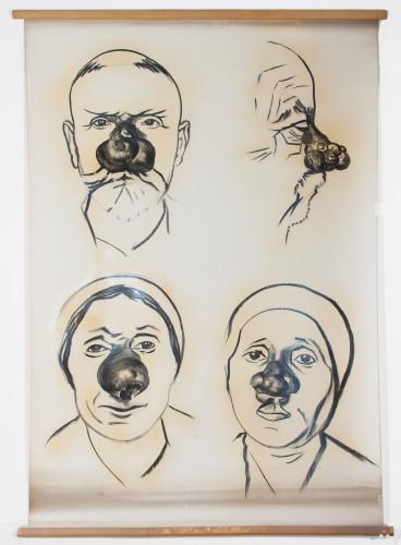 Četiri slučaja tumora nosa