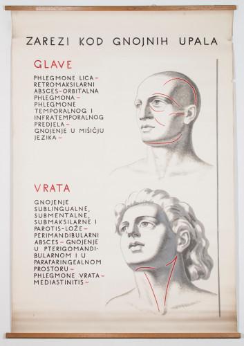 Početni kirurški rezovi pri gnojnim upalama raznih područja glave i vrata