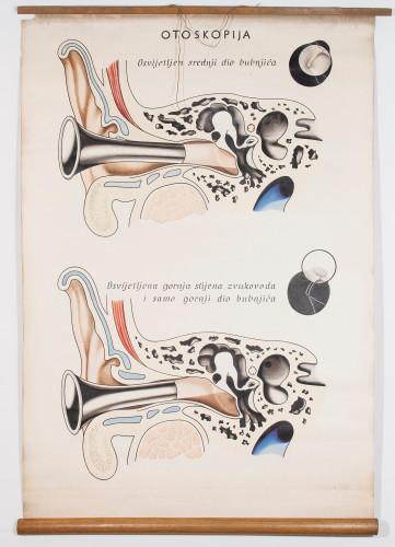Otoskopija