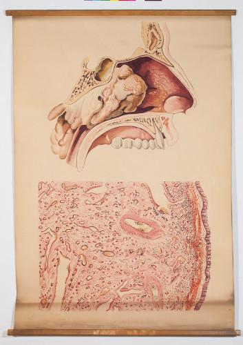 Rinološka slika (gornji crtež) i histološka slika juvenilnog angiofibroma